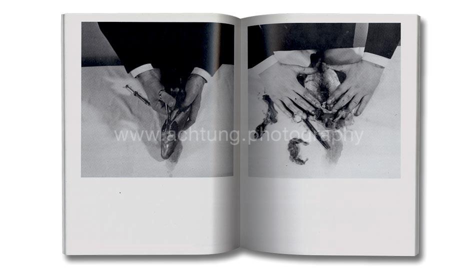 rudolf_schwarzkogler_galerie_krinzinger_1976_03